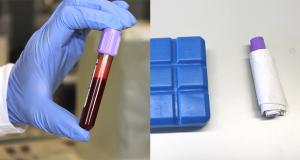 Analisi di ematologia e chimica clinica: trattamento e consegna del campione