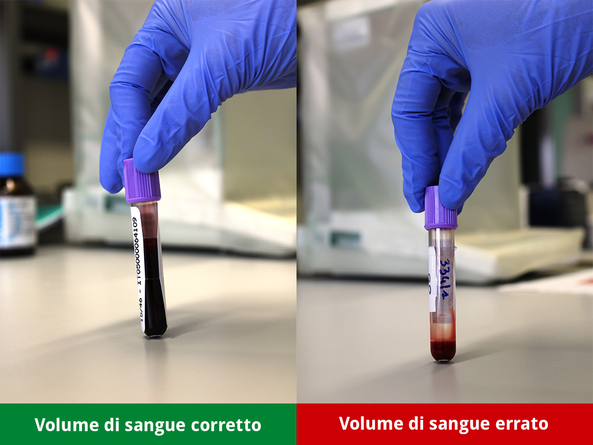 https://www.izsvepets.it/wp-content/uploads/2015/03/volume-sangue-provetta-anticoagulante-corretto-errato.png