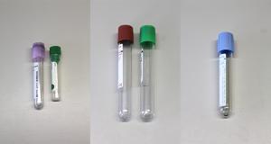 Analisi di ematologia e chimica clinica: scelta dell'anticoagulante