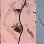 Stadio larvale di Dirofilaria immitis nella zanzara coreana
