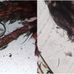 Dirofilaria immitsi nei tubi malpighiani della zanzara coreana