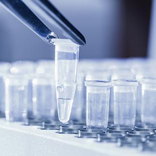 Errori nel campionamento per esami biomolecolari