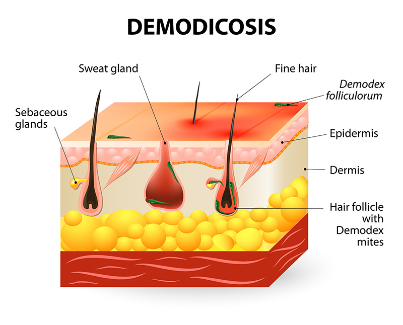 Demodex Demodicosis