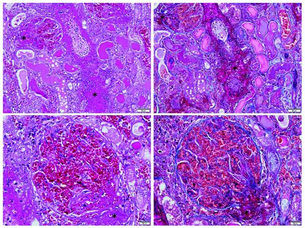 glomerulo e di un'arteria interlobulare di un cane affetto da CRGV